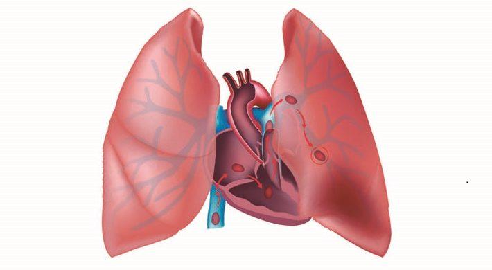 Tromboembolismo pulmonar y tumor retroperitoneal