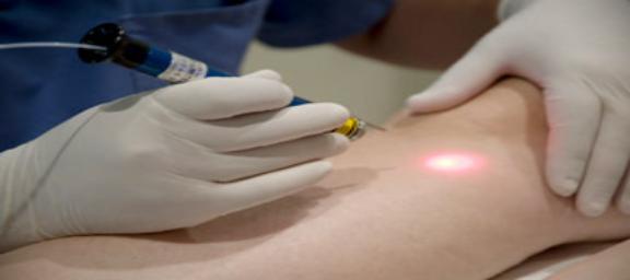 Tratamiento vascular con laser transdermico Nd-Yag 1064