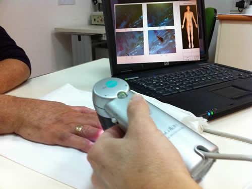 Videocapilaroscopia