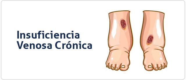 Insuficiencia Venosa Crónica